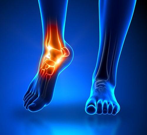 Grupo ortopedista especialista em pé e tornozelo