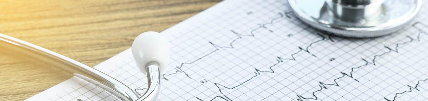 Serviço de Arritmias Cardíacas do HCor desenvolve nova técnica para o tratamento da fibrilação atrial