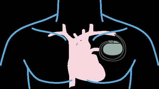Restrições da ressonância cardíaca