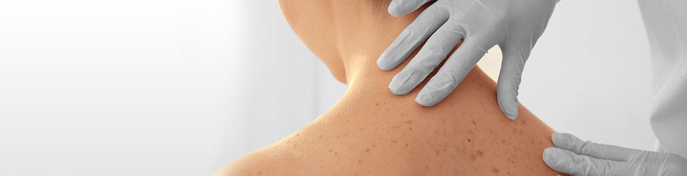 Dermatologista do HCor alerta sobre pintas que podem sinalizar câncer de pele