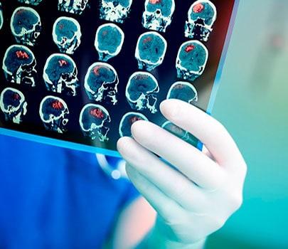 Neurologista do HCor dá dicas para diminuir o risco de AVC