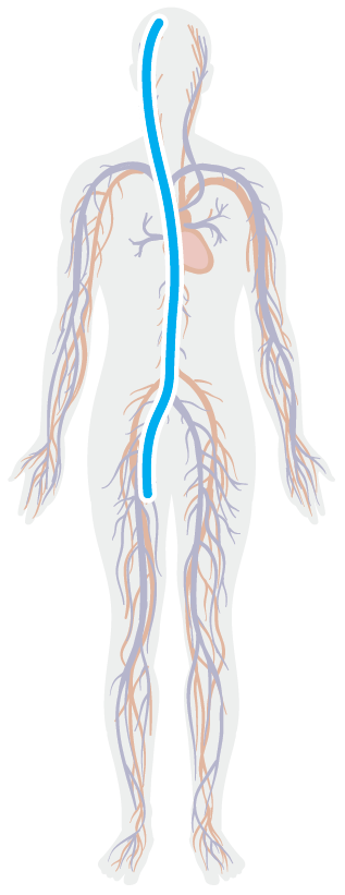 MAV - Cirurgia por Cateterismo