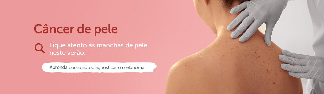 Câncer de Pele (Oncologia)