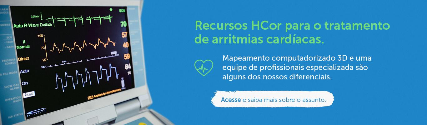 Recursos HCor para o tratamento de arritmias cardíacas.