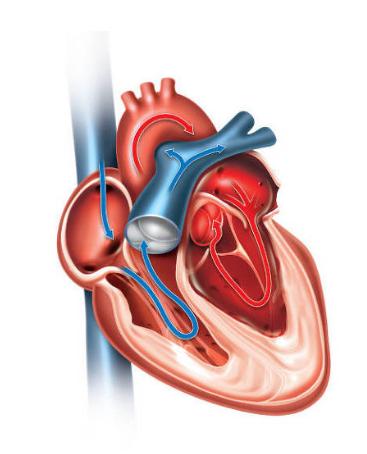 Coração com Insuficiência Diastólica